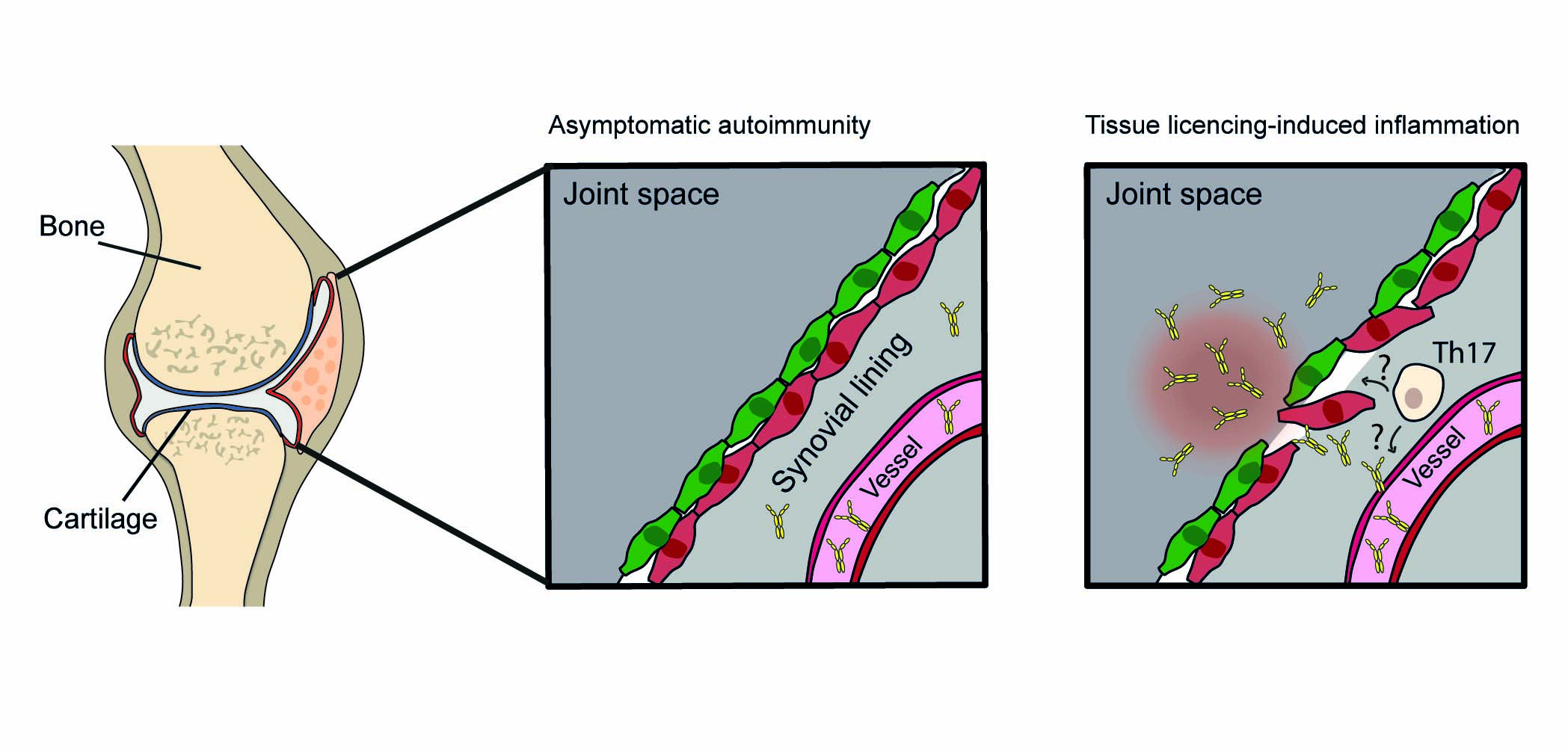 Skizze Gelenk. Aktivierung von Th17 Zellen durch B Zellen.